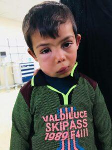 Historia 6-letniego irackiego chłopca Hodeifah