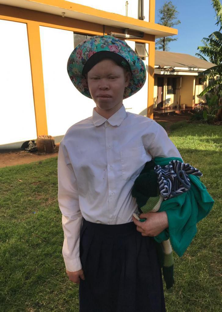 albinos africa kids