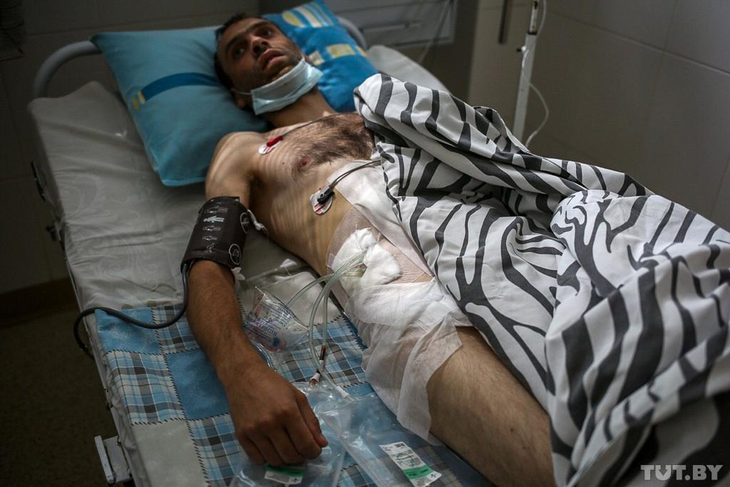 Represje na Białorusi. Jedna z ofiar ciężkiego pobicia.