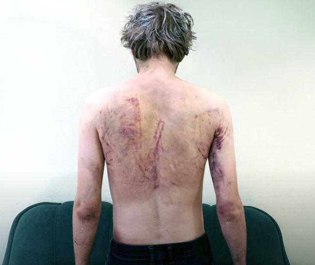 Obrażenia na ciele powstałe wyniku tortur, których dopuścili się funkcjonariusze z więzienia w Akrestino w Mińsku, 2020 rok